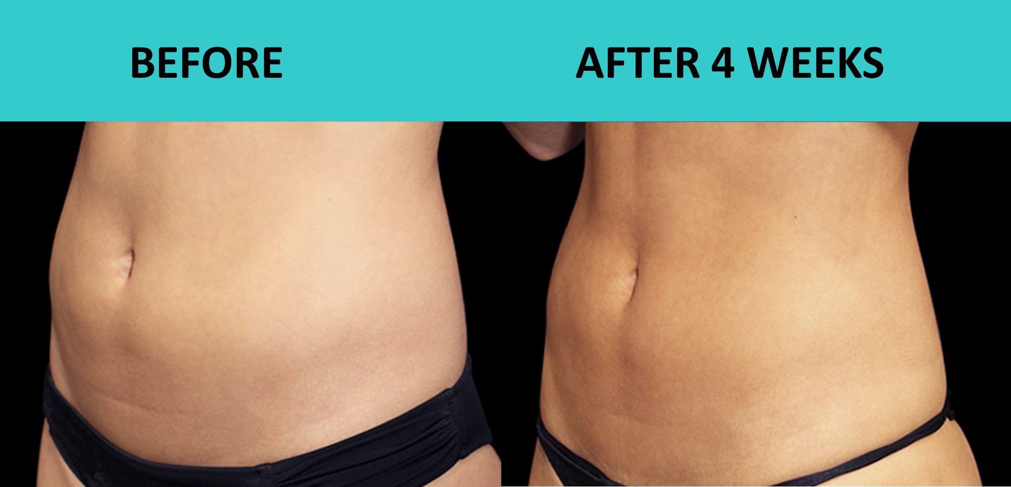 SABA Sculpt – incredible new body sculpting technology produces great results