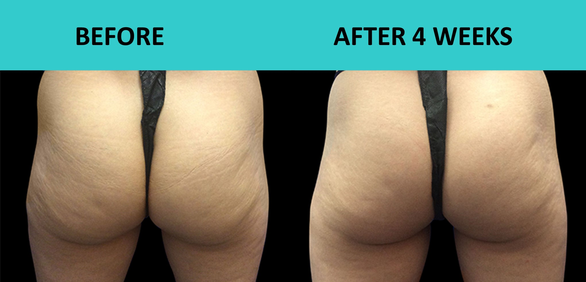 SABA Sculpt – butt lift without surgery or exercise