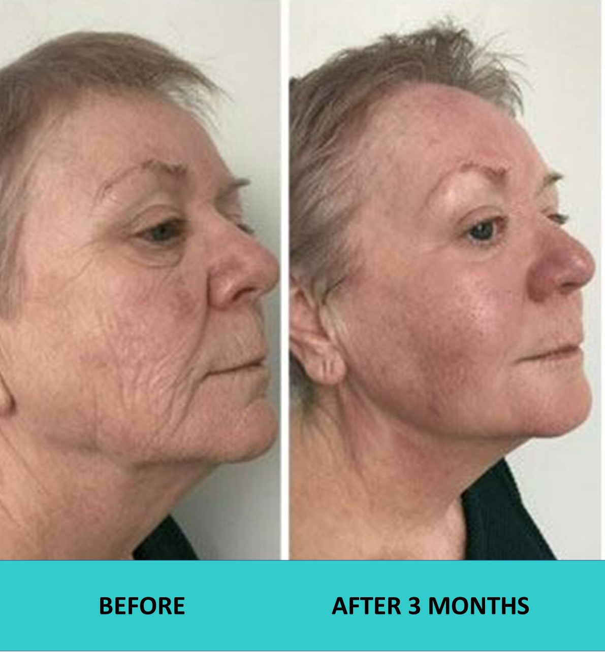 Fantastic results three months after the 4D HIFU face and neck treatment.