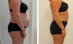 SABA Sculpt – transform your body with 5 x 30 minute treatments