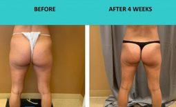 SABA Sculpt – non surgical butt lift at SABA Medispa