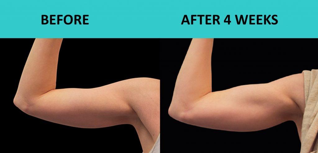 SABA Sculpt – build your biceps without exercise