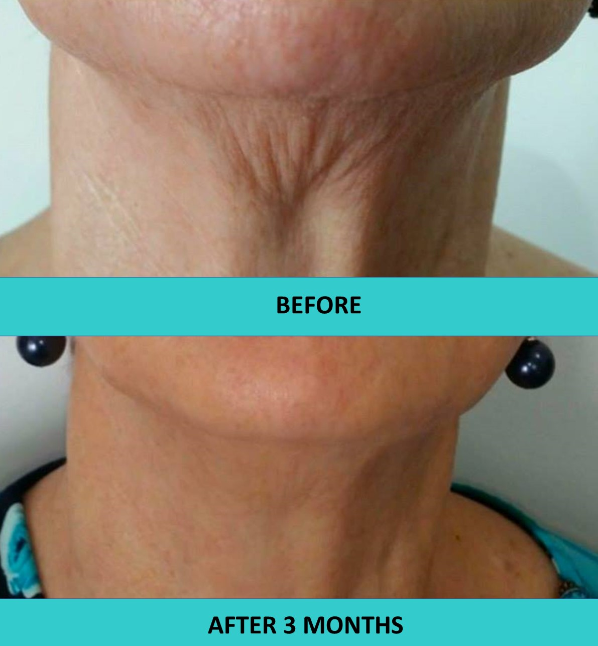 HIFU non surgical face lift in action - great neck results after three months.