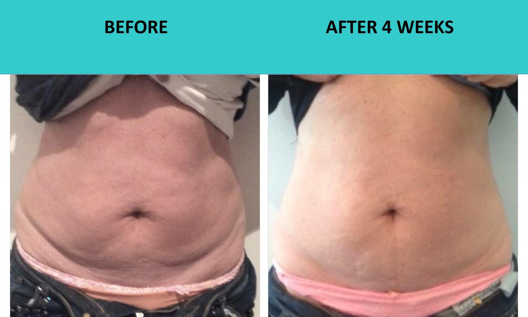 SABA Sculpt – good abdomen results at SABA Medispa