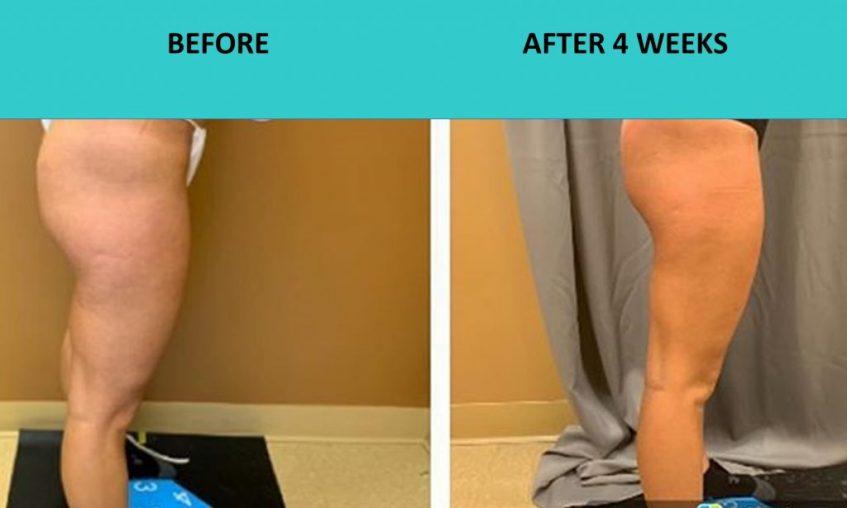 SABA Sculpt – great thigh results at SABA Medispa