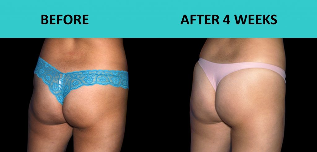 SABA Sculpt – lift your butt without surgery or exercise
