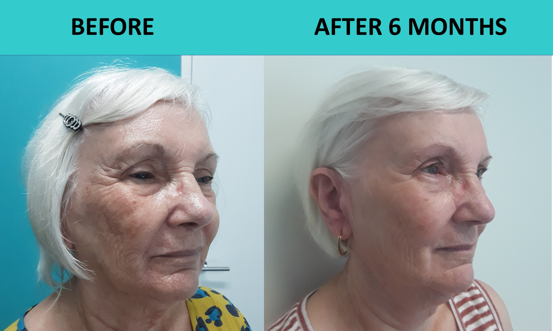Incredible transformation at SABA Medispa. 1 x 4D HIFU Premium treatment plus 4 x New Face treatments.