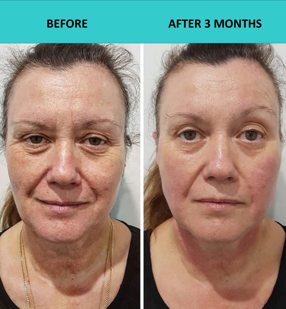 4D HIFU in action - another happy customer three months after her procedure.