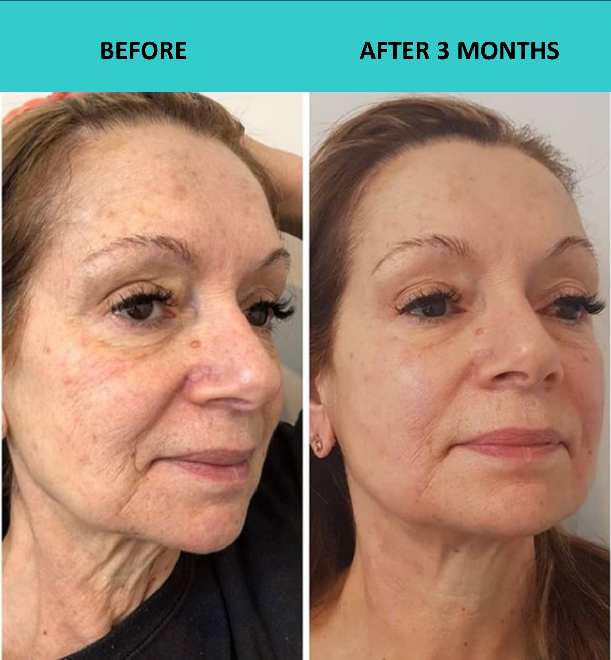 4D HIFU face and neck lift - another great result showing very significant improvements to this customers face making her skin much tighter, fresher and younger looking!